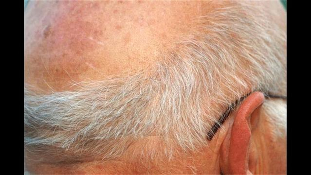 Study Shows Hair Can Predict Heart Disease