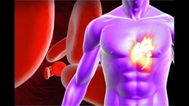 Irregular Heartbeat Can Also Mean Memory Issues