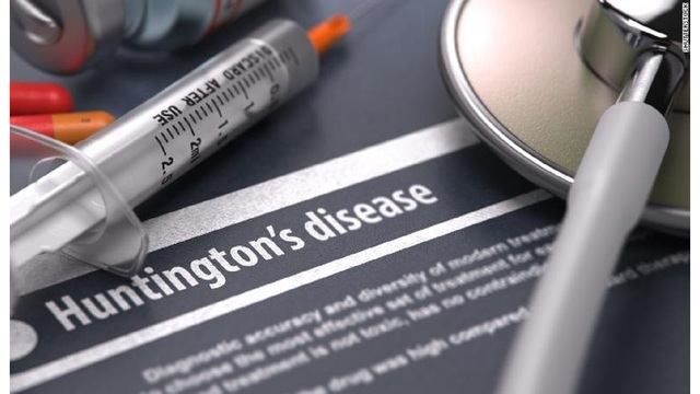 New drug shows potential in slowing progress of Huntington's disease