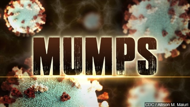 Cheerleaders warned about mumps exposure after national competition in Dallas