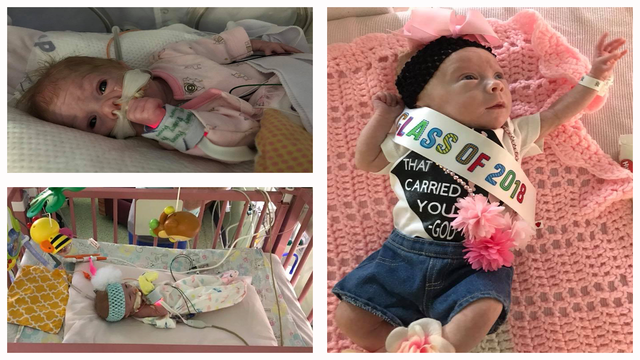 2 pounds, 7.5 ounces: Cisco preemie welcomed home 10 weeks after birth