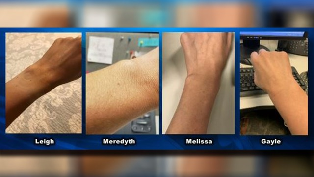 Women who share photos of the same freckle on their wrist become viral.